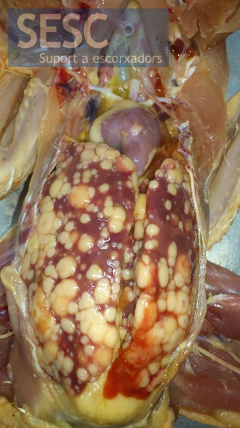 Lymphoid neoplastic infiltrate in the liver.