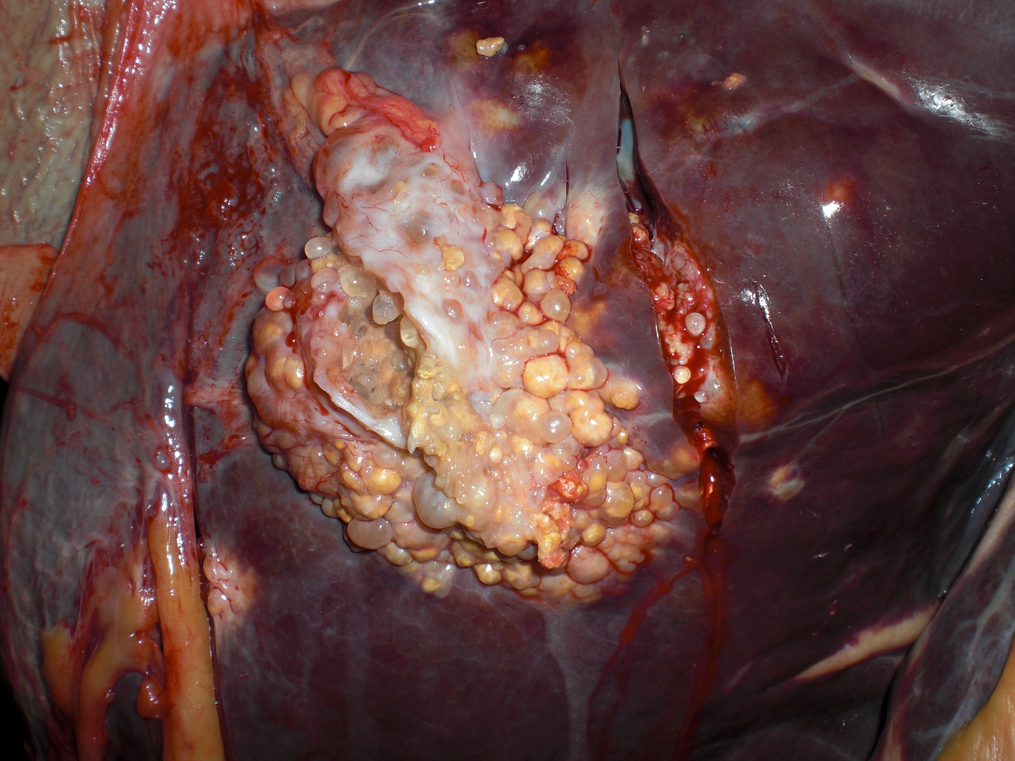 Multiple vesicular lesions in the liver of a cow | SESC ...