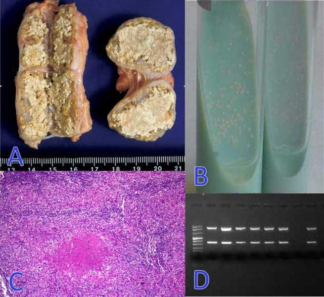 A. Characteristic granulomatous lesions in the mediastinal lymphnode. B. Culture medium with growth of colonies of Mycobacterium bovis. C. Granulomatous lesions characteristic of tuberculosis. D. PCR positive results to M.tuberculosis complex.