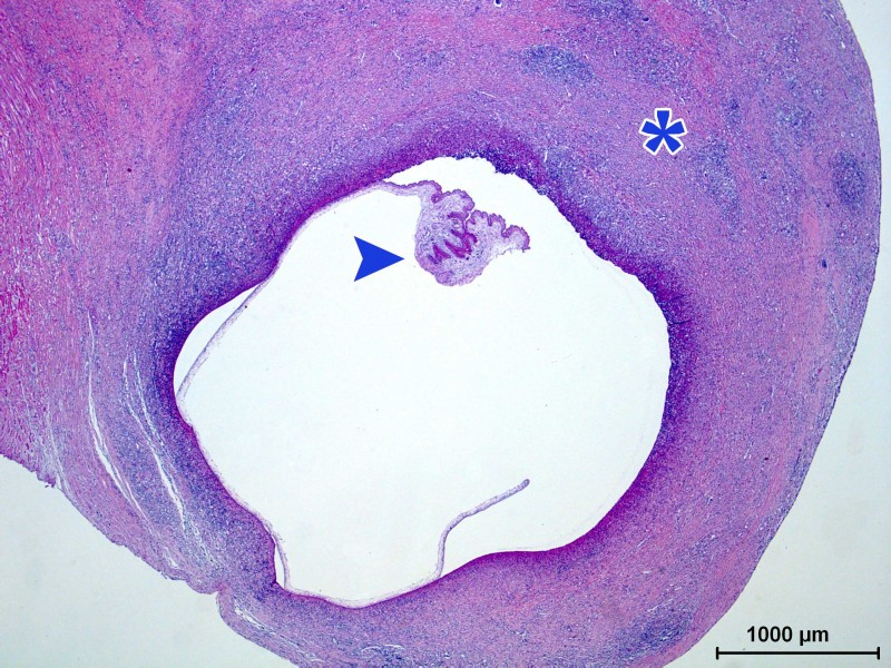 Photomicrograph of an hematoxylin and eosin staining. At low magnification we can see the cyst formed by a cavity containing the parasite (arrow) surrounded by a fibrous capsule (asterisk) with an intense inflammatory reaction rich in eosinophilic polymorphonuclear leukocytes.