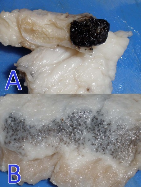 A: Cutaneous melanoma in the hind limb of a six months old pig . Methastasis presented in the inguinal lymph node. B: This image corresponds to subcutaneous adipose tissue in the histological study the presence of benign-appearing melanocytes with ectopic migration to other dermal structures was observed. Its link to the presence of a melanoma is unknown.