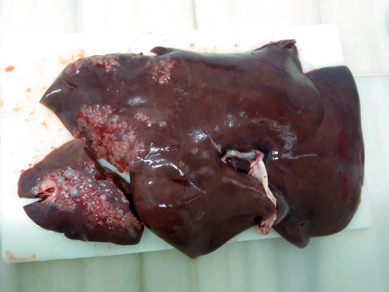 Multiple intraparenquimatous cysts in the liver.