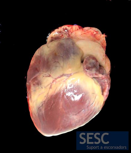 Yellow color changes (jaundice) were evident in the pericardial adipose tissue and the sclera, endothelia and renal pelvis.