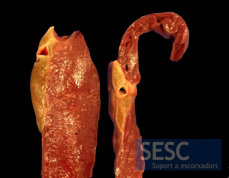 When sectioned it can be seen that the coloring affects the entire thickness of adipose tissue.
