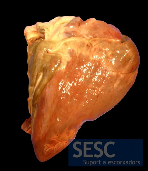 Adipose tissue showed brown discoloration. In the picture this is evident in the epicardial fat.