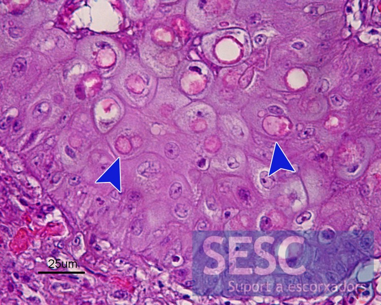 Multiple eosinophilic intracytoplasmic inclusion bodies (arrows) containing virus particles.