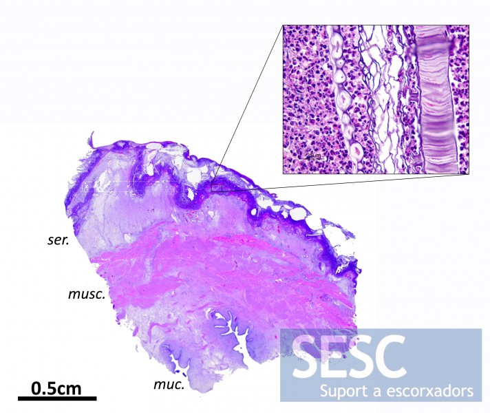 Microphotograph evidencing remains of vegetal material among the inflammatory cell infiltrate located in the serosa of the bladder (muc: mucosa, ser: serosa, musc: muscular).
