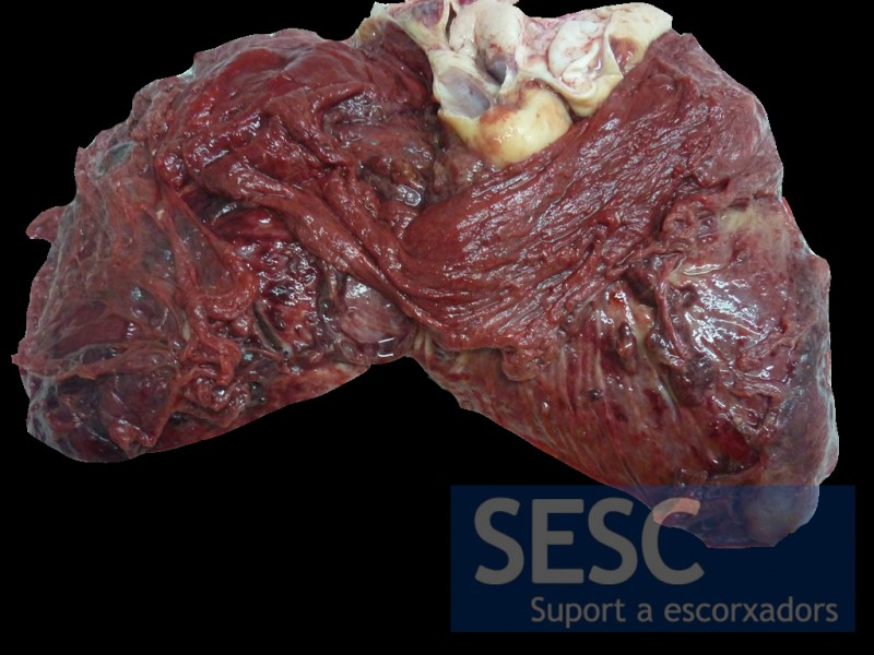 Chronic  fibrinous-haemorrhagic pericarditis.