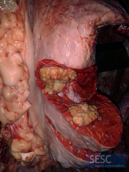 Granulomatous lesion in the lung  parenchima.