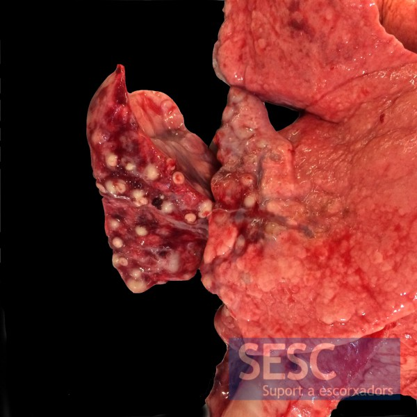 Apical lung lobe area with multiple mineralized spherical granulomatous lesions.
