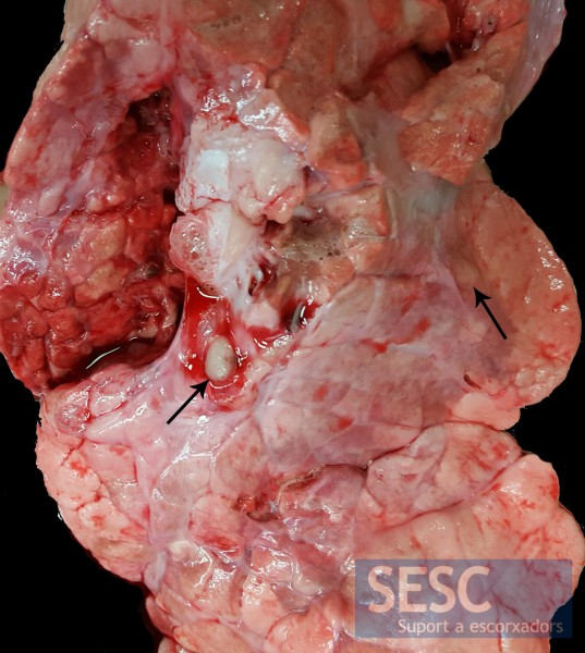 Granulomatous lung lesions (arrows) were observed.