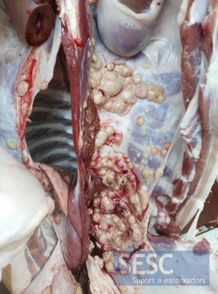 Multiple nodules on the wall of the abdominal cavity and diaphragm.