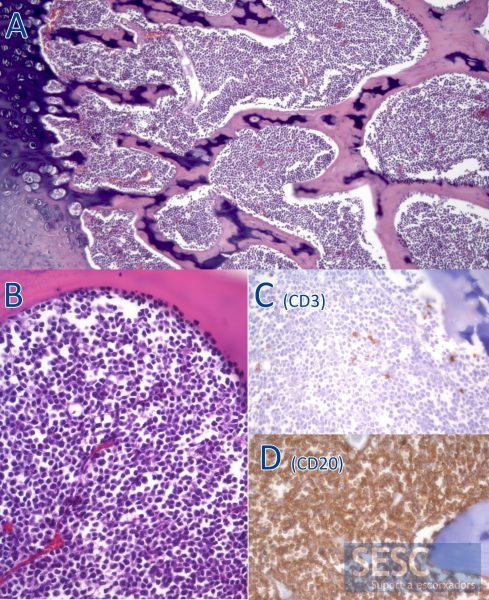 Histologically there was a neoplastic proliferation that occupied the entire bone marrow (A). At higher magnification it could be observed that these were round cells of lymphoid origin (B) which, by immunohistochemistry, were mostly identified as B cells due to the positivity against CD20 (D) and negativity against CD3 (C).