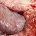 Diaphragmatic hernia of a liver lobe in a pig