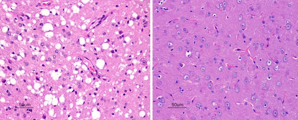 D'aquestes dues microfotografies de cervell de ratolí, quina creus que te una encefalopatia espongiforme?