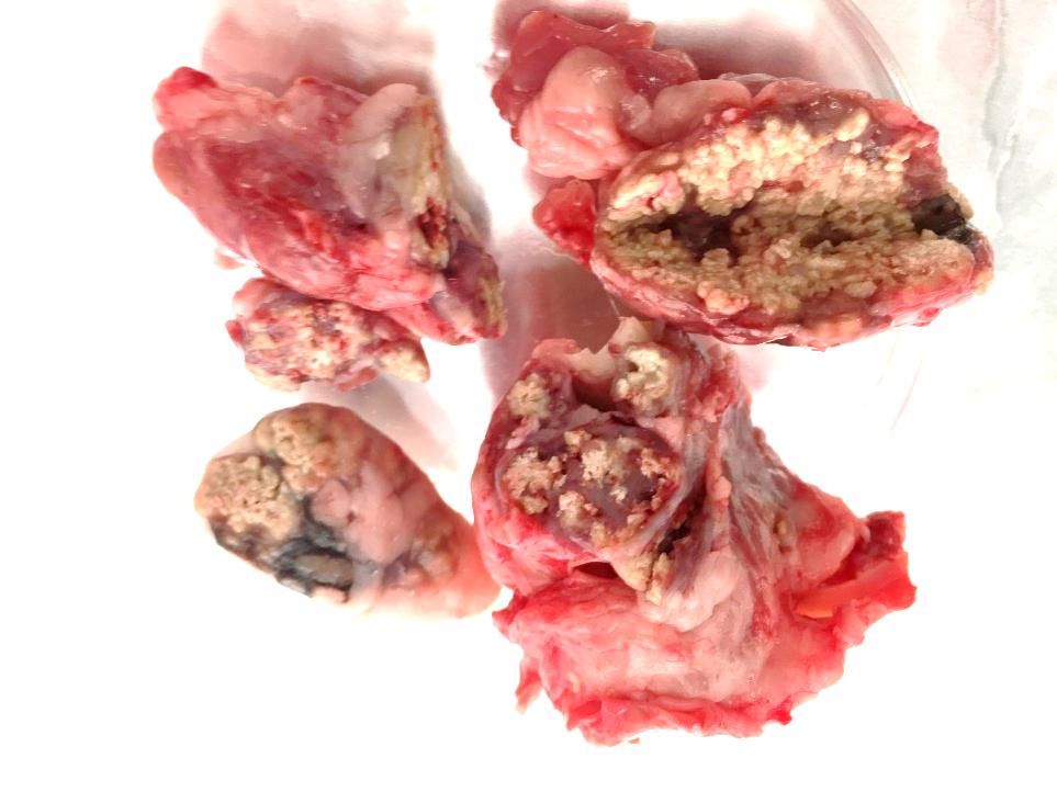 Lesiones tuberculosas en nódulos linfáticos de jabalí.